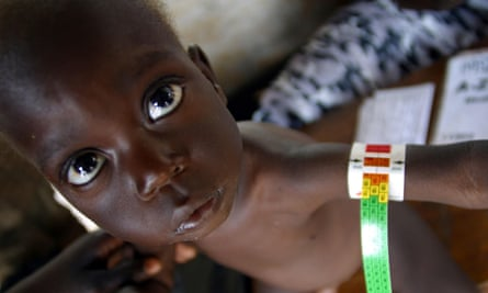 A baby in the Médecins Sans Frontières feeding centre, in Lira, Uganda, being measured for malnutrition
