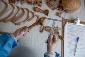 Giselle Contreras measures a human bone