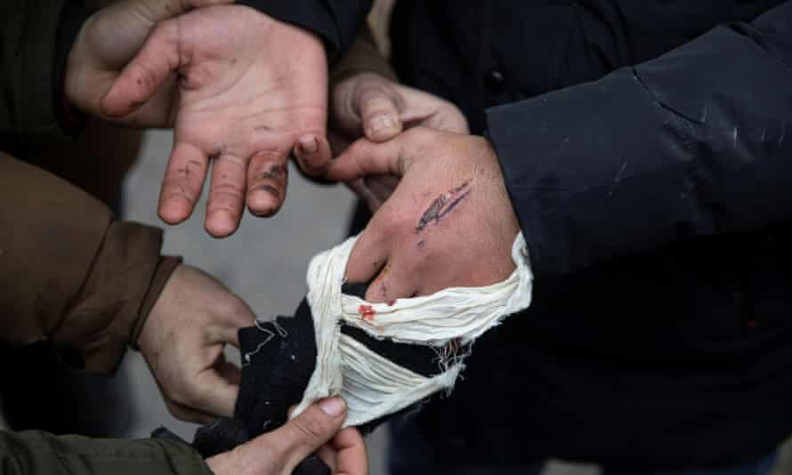 An injured migrant shows wounds he said were caused by Hungarian police, 28 January 2020.