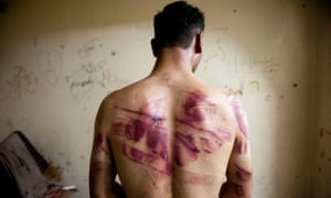 A man shows the wounds on his back.