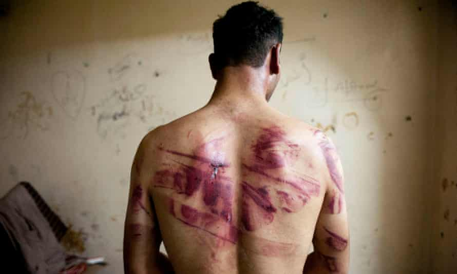 Signs of torture on the back of man after he was released from regime forces in Aleppo in August 2012.