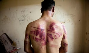 A Syrian man shows marks of torture on his back after he was released from regime forces in Aleppo in 2012.