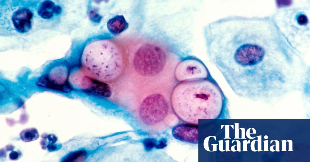 Chlamydia vaccine moves a step closer