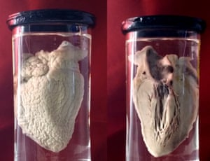 This heart specimen from 1908 (which has been repaired by me) illustrates Pericarditis which is inflammation of the pericardium: the membrane around the heart.