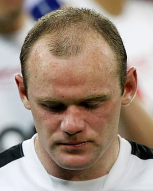 Widow's peak: Wayne Rooney before his £30,000 follicular unit extraction.