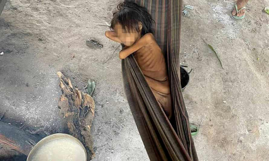 An emaciated Yanomami girl in Maimasi village, Roraima state, released by a Catholic missionary.