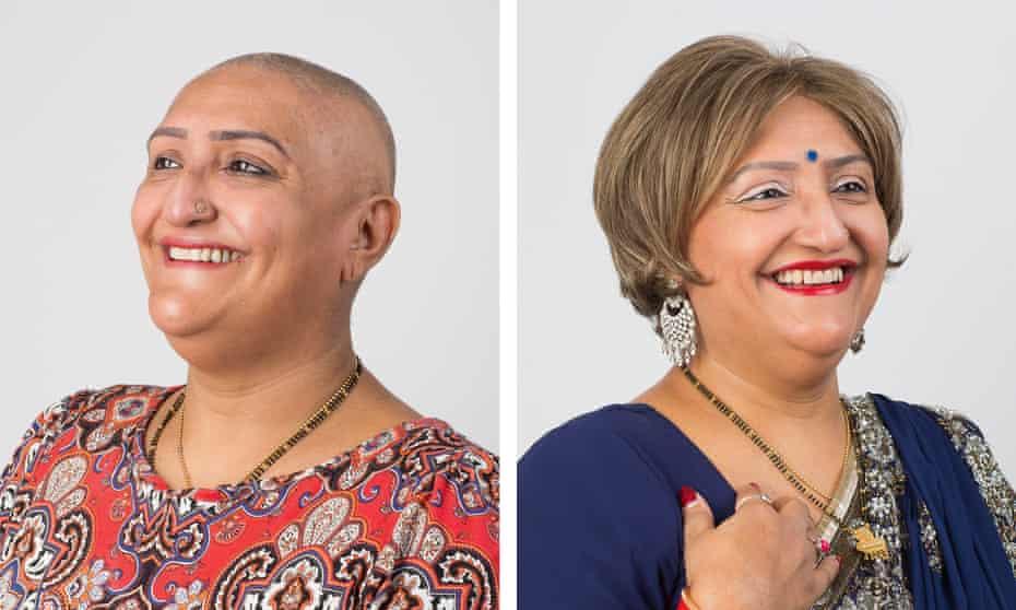 Ranjit Senghera-Marwaha for Alopecia UK
