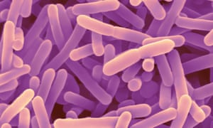 Bifidobacterium are used as a probiotic to promote good digestion, boost immune function, and increase resistance to infection