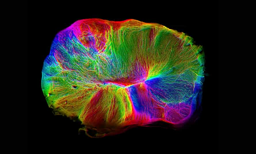 An image of the cerebral organoids grown from stem cells by Cambridge researchers.
