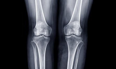 X-ray of knee joints