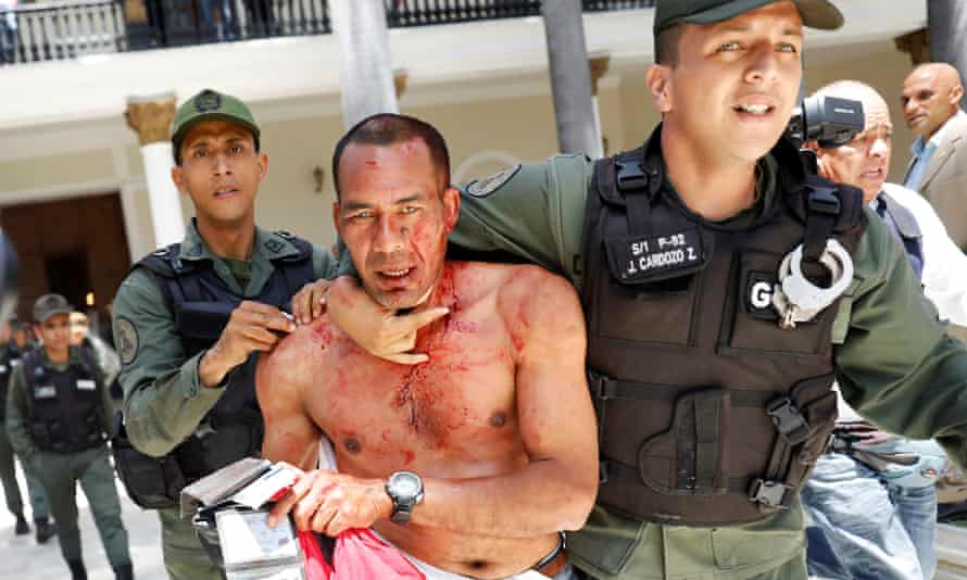 An injured government supporter is taken away by security forces in Caracas, Venezuela.