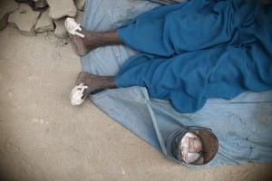 A leprosy sufferer begging on the street in Kathmandu, Nepal