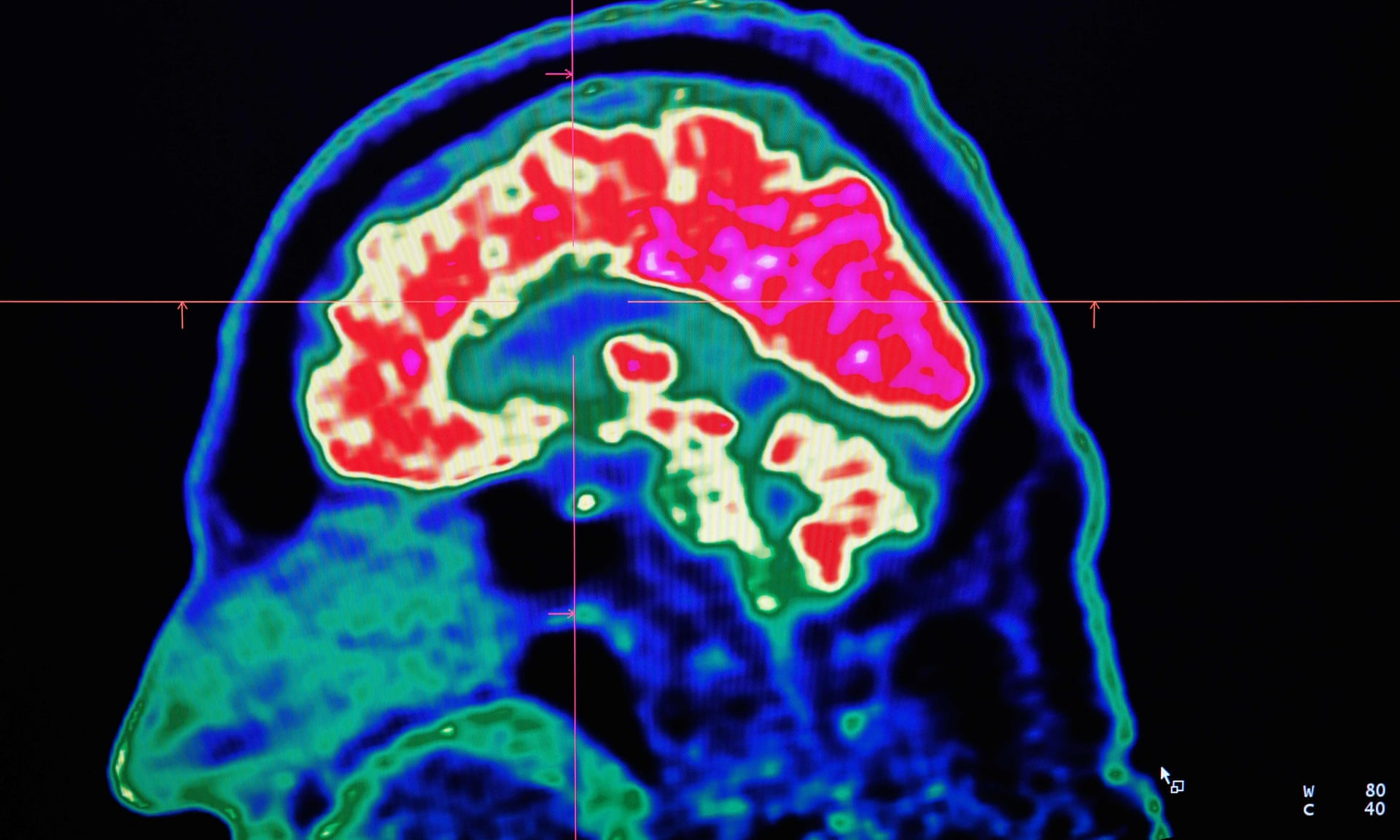 Exercise helps brain deal with Lewy Body Dementia pathologies