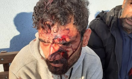 A refugee shows wounds allegedly inflicted by Croatian border forces.