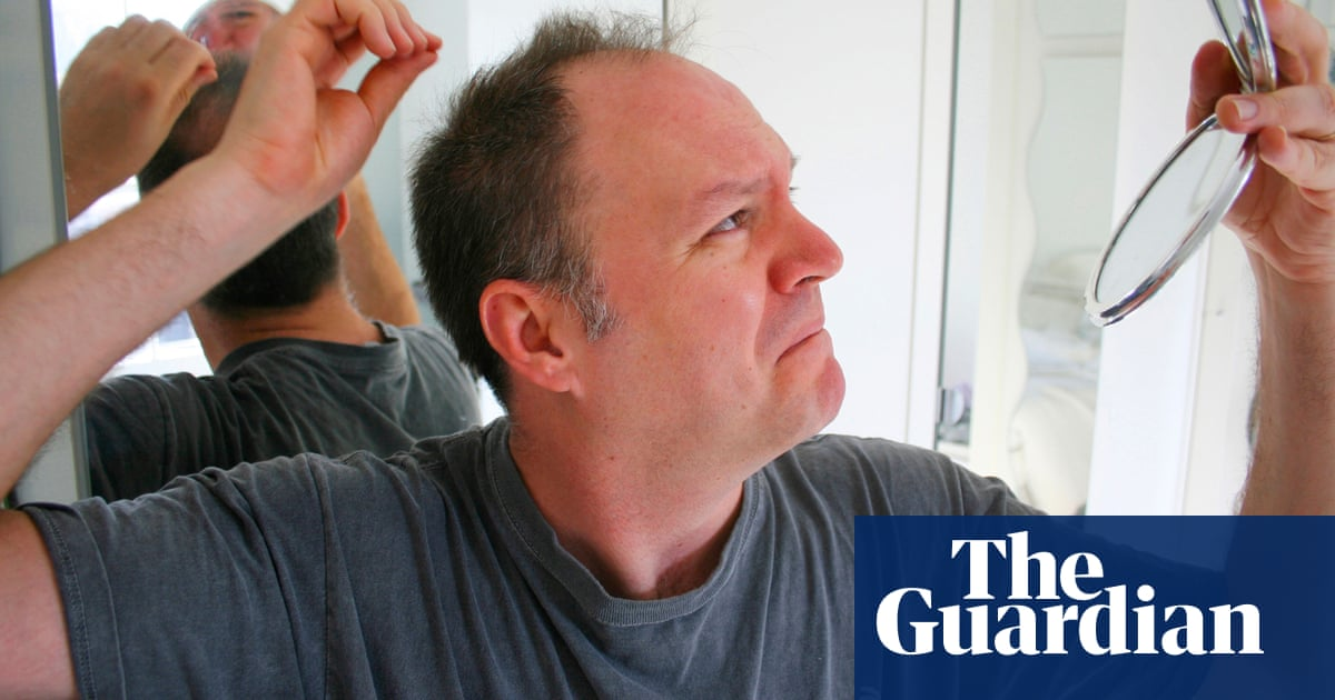 Seven Ways To Avoid Hair Loss Fashion The Guardian