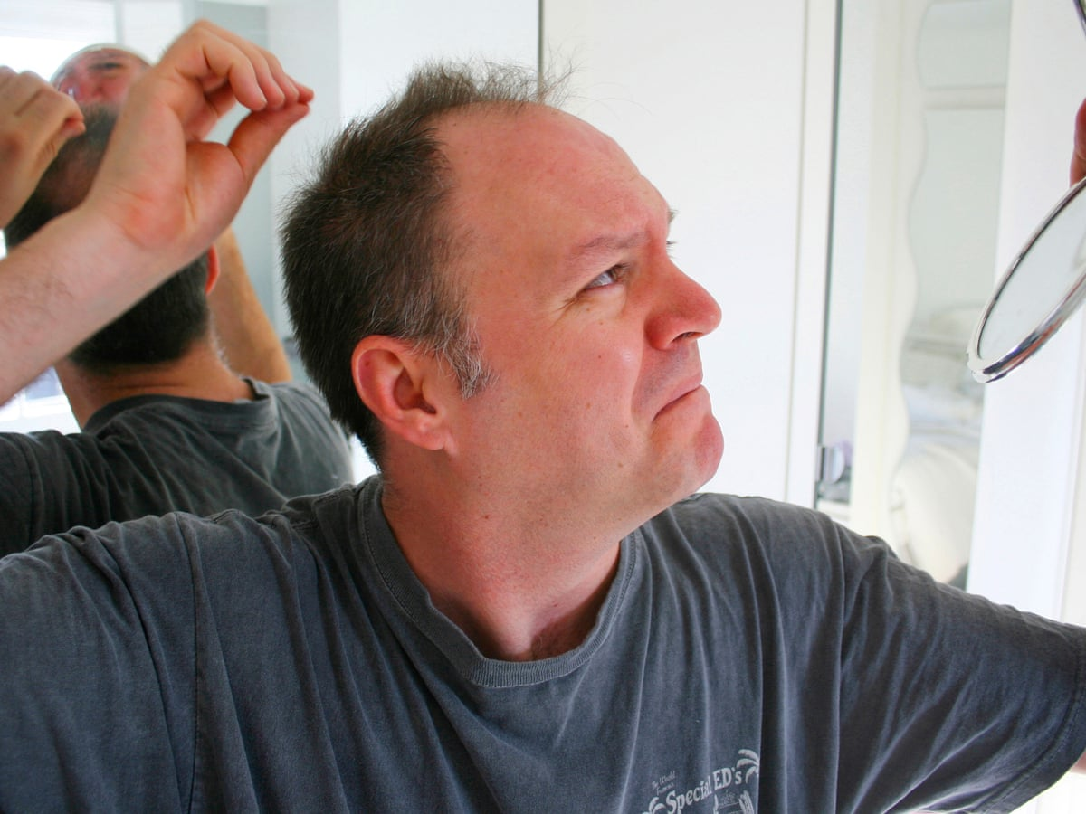Seven Ways To Avoid Hair Loss Men S Hair The Guardian