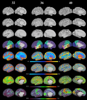 Project To Map Human Brain From Womb To Birth Releases Stunning - 1 in 10 babies cp map of us