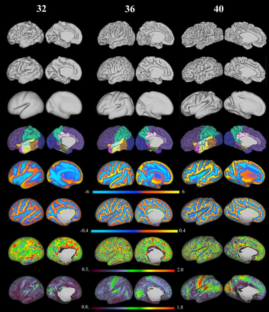 3D reconstruction of the cortical surface and calculated features from a seven-month, eight-month and nine-month baby brain MRI. From top to bottom: white matter surface, cortical surface, inflated surface, parcellation into different structures, sulcal depth maps, mean curvature, cortical thickness and T1/T2 myelin maps.