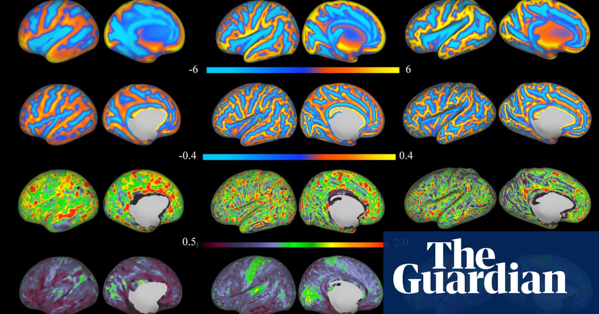 Economic Stress Linked To Poor Brain >> The Neuroscience Of Inequality Does Poverty Show Up In Children S
