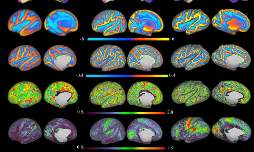 MRI brain scans of babies aged seven to nine months.