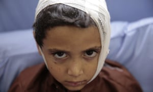A child injured in the airstrike rests in hospital.