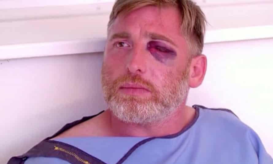 Alexander Lashkarava in hospital with a black eye visible.