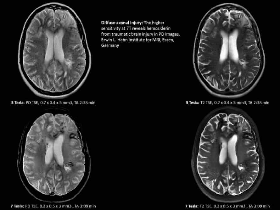 A brain scan from the Siemens Magnetom Terra 7 Tesla system, showing its high level of detail.