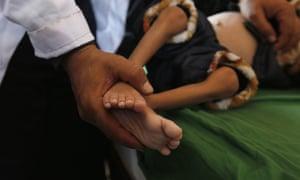 A Yemeni doctor treats a malnourished child at a hospital.