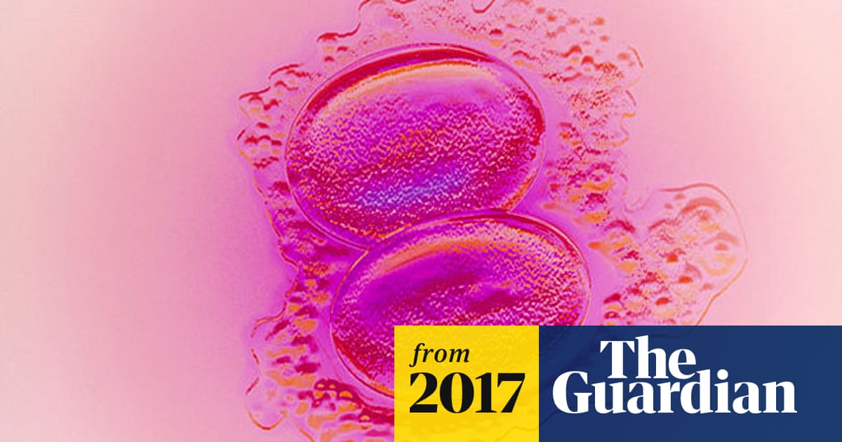IVF pregnancy less successful with two embryos, study finds
