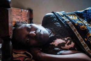 Minsa Lumu lies after she just gave birth to her first born child.