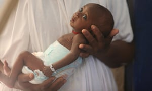 A malnourished baby at a hospital in north-east Nigeria.