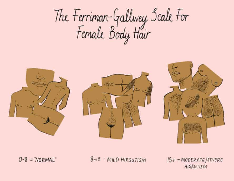 The Ferriman-Gallwey scale for the measure of hirsutismIllustration: Mona Chalabi