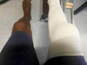 Abdikaldeawe Abdisalam, a Somalian asylum seeker, with his badly swollen leg