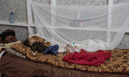 Two-year old Said Hammoud Hussein, who is recovering from malnutrition, rests at Ataq General Hospital