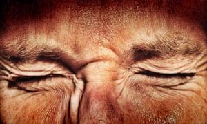 Wrinkled skin on face