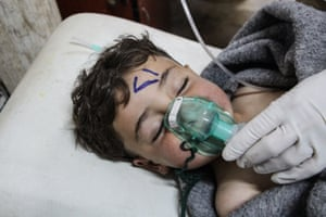 A child receives treatment after a chemical attack at a field hospital in Saraqib.