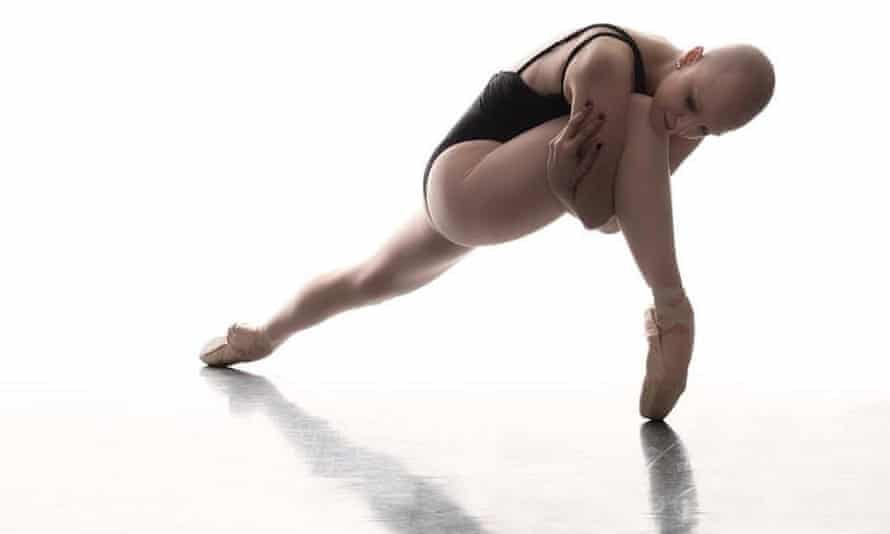 Maggie Kudirka, a 25-year-old ballerina with breast cancer, has had to crowdfund her medical treatment.