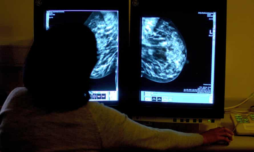 A consultant studies a mammogram.