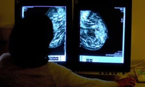 A consultant studying a mammogram