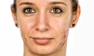 Have I Got Adult Onset Acne And Do I Need Treatment