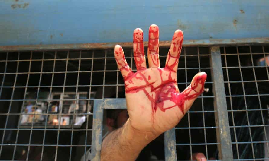 A protester shows his injured hand