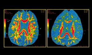 Diffusion Tensor MRIshowing a normal brain on the left and a brain probably affected by Alzheimer's disease on the right.