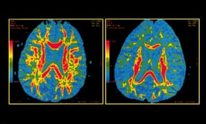 Could Modified Alzheimers Drug Treat >> The Long Difficult Search For A Drug To Treat Alzheimer S