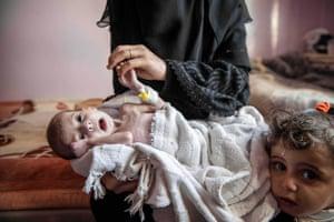 Severely malnourished infants also struggling against infections at the Sabeen hospital in Sana'a, Yemen, 18 November 2018