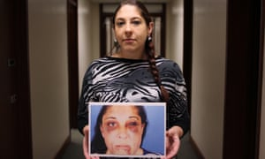 Sabrina, holding a photograph of the injuries inflicted by her former partner, Paul Hopkins, who was sentenced to just two years in jail for the attack.