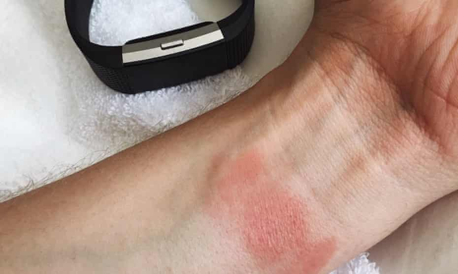 Wearing a Fitbit for just one day irritated the skin on my wrist, leaving it red and resembling a burn.