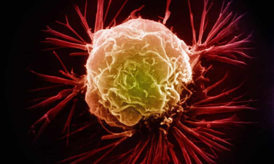 A single breast cancer cell. Tumours are collections of different cells, and some are more resistant to drugs than others.