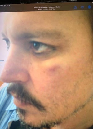 Bett accepted that the photograph did not show any injuries that Depp allegedly suffered in April 2016.