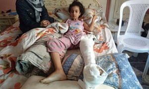 Ghina Ahmad Wadi, who was shot in the leg by a sniper in Madaya, a town west of Damascus, Syria.