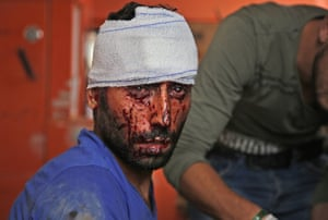 Tal Abyad, SyriaA Syrian man receives treatment in the border town of Tal Abyad which was seized by Turkey-backed forces last week.